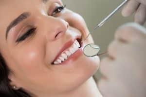 calgary-teeth-cleaning