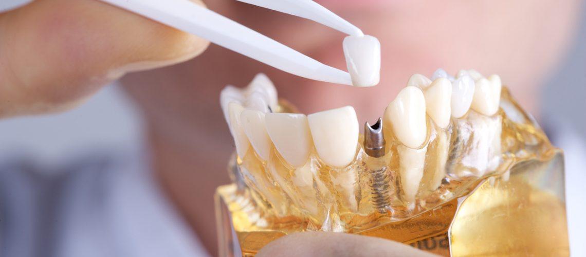 calgary-dental-implants